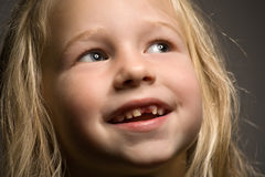 Little girl without one front tooth. Portrait of a funny little girl without one front tooth stock photo