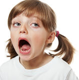 Little girl opening mouth with missing teeth. White background Stock Photos