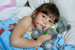 The little girl suffering from chicken pox Stock Photography