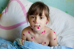 The little girl suffering from chicken pox Stock Photos