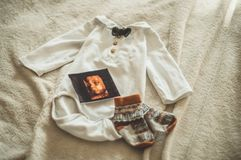 Little hand made baby clothes. Photo of ultrasound. newborn clothes on beige woolen background stock photo