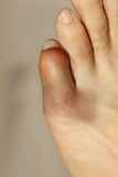 Little toe with severe inflammation and bruising Stock Images