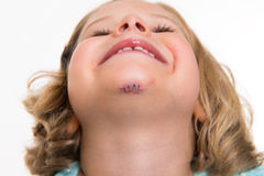 Little white girl with wound in her face Stock Image