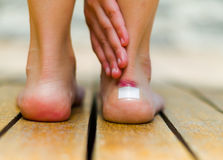 Little white patch on the ankle of feet, skin red that hurts. Wooden floor Royalty Free Stock Photography