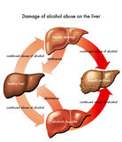 Liver and alcohol. Medical illustration of the damage caused by alcohol abuse on the liver stock illustration
