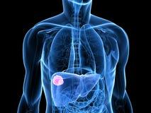 Liver cancer Royalty Free Stock Photos