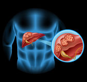 Liver Cancer diagram in detail Stock Images