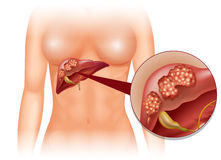 Liver cancer diagram in detail Stock Photos