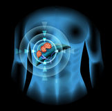 Liver Cancer diagram in human Stock Images