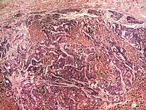 Liver cancer of a human. Photomicrograph panorama as seen under the microscope, 50x zoom royalty free stock photos