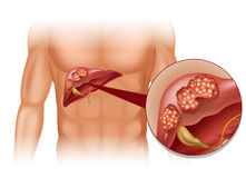 Liver cancer in human Stock Photo