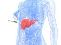 Liver cancer injection - biopsy Royalty Free Stock Images