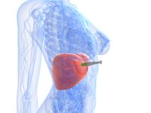 Liver cancer injection - biopsy. 3d rendered illustration of an injection in liver tumor Royalty Free Stock Photo