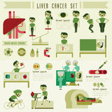 Liver cancer set and info graphic Royalty Free Stock Photography