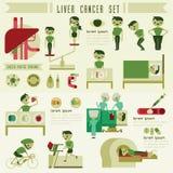 Liver cancer set and info graphic vector illustration
