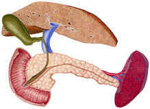 Liver - Cirrhosis stock photography