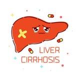 Liver cirrhosis cartoon poster Stock Photos