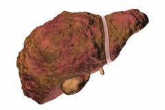 Liver cirrhosis illustration Stock Images