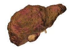 Liver cirrhosis illustration Royalty Free Stock Photos