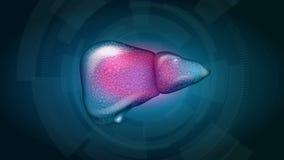 Liver Cirrhosis stock video