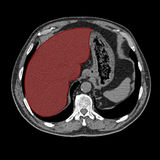 Liver on computed tomography Royalty Free Stock Photography