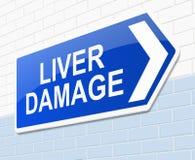 Liver damage concept. Illustration depicting a sign with a cliver damage concept royalty free illustration