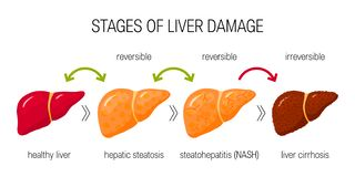 Free Liver Damage Vector Concept Royalty Free Stock Image - 126051776