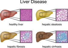 Liver Disease. With micrograph of each liver condition Stock Photography
