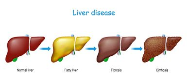 Free Liver Disease. From Healthy Internal Organ To Fatty Liver, Fibrosis, And Cirrhosis Royalty Free Stock Photography - 164157207