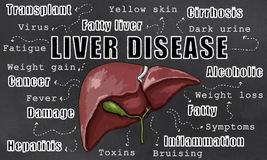 Liver Disease Illustration Royalty Free Stock Photos