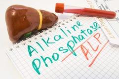 Liver figure, test tubes with blood, liver function test result are near inscription Alkaline Phosphatase ALP. Value of Alkaline P royalty free stock photos