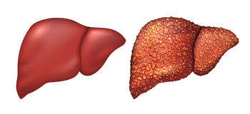 Liver of healthy person. Liver patients with hepatitis. Liver is sick person. Cirrhosis of liver. Repercussion alcoholism. Isolated on white vector Royalty Free Stock Photography