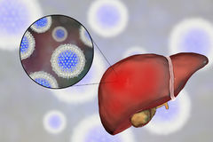 Liver with Hepatitis C infection and close-up view of Hepatitis C Virus. HCV, 3D illustration Royalty Free Stock Photography