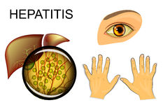 Liver, hepatitis and yellowing of eyes and hands Royalty Free Stock Images