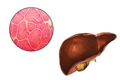 Liver illustration and micrograph Stock Photography