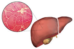 Liver illustration and micrograph Royalty Free Stock Image