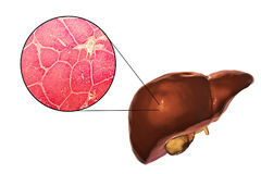 Liver illustration and micrograph Stock Photos