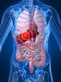 Liver inflammation vector illustration