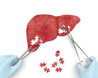 Liver operation puzzle. Concept: hands of surgeon with surgical instruments (tools) performs liver surgery as a result of hepatic disorder (cirrhosis, hepatic Stock Image