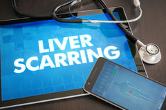 Liver scarring (liver disease related) diagnosis medical concept. On tablet screen with stethoscope Stock Photo