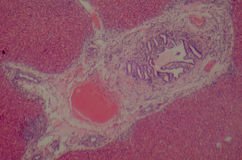 Liver tissue. Science medical anthropotomy physiology microscopic section of  liver tissue Stock Image