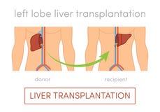Liver transplantation concept Stock Image