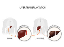 Liver transplantation or hepatic transplantation. Replacement of a diseased liver recipient on a healthy liver from donor Royalty Free Stock Photography