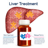 Liver treatment concept Royalty Free Stock Photography