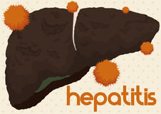 Liver Under Attack by Hepatitis Virus, Vector Illustration. Poster with hepatitis virus attacking a sick liver Stock Photo