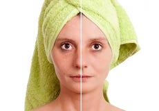 läkt finnig kvinna för hud Arkivbild