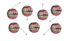 Éléments infographic de légendes d'arrêtoir d'appareils dentaires Photographie stock libre de droits