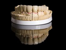 LMonolithic zirconia restorations  implant supported with the cer Royalty Free Stock Image