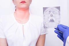 Lo specialista di medico tiene l'immagine dei raggi x sui precedenti di una ragazza che ha tonsillite della gola e della nasofari immagine stock libera da diritti