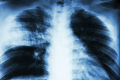 Lobar pneumonia . Film chest x-ray show alveolar infiltration at right middle lobe due to tuberculosis infection royalty free stock photography